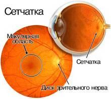setcha2 Лечение сетчатки